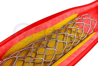 心脏支架激光切割