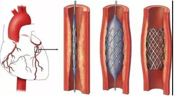 心脏支架高精密激光切割